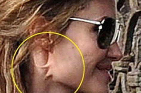 Анджелина Джоли изуродовала шею
