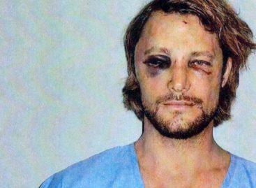 Фотографии избитого бывшего мужа Холли Берри попали в интернет